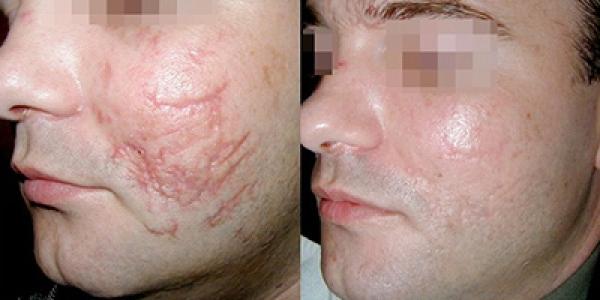 Image result for ترمیم و درمان جای سوختگی با جراحی پلاستیک