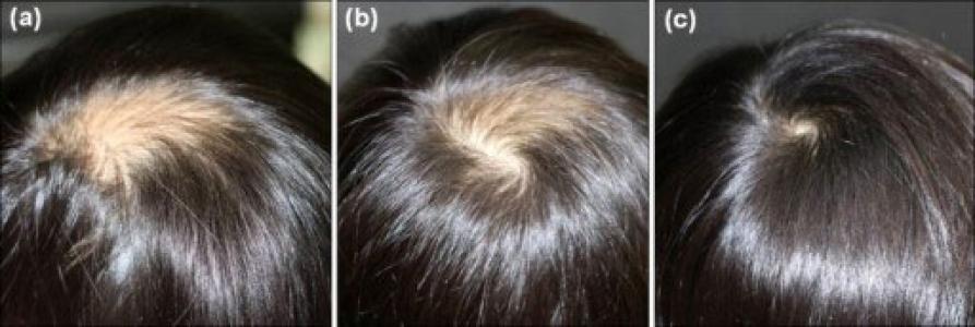 درمان ریزش مو تکه ای