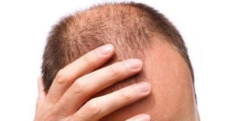 چه افرادی برای انجام کاشت مو به روش FIT مناسب نیستند؟