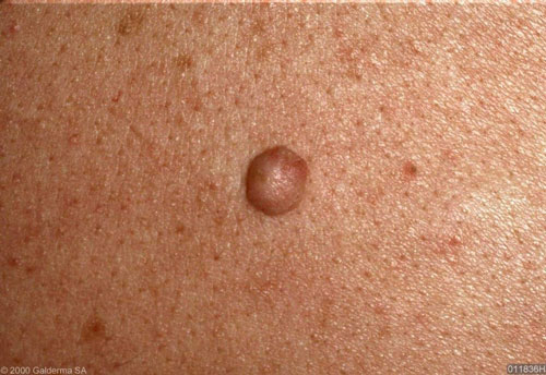 Intradermal