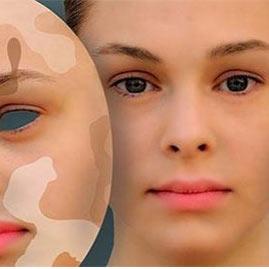 تیرگی پشت لب بیماری پیسی، برص، لک وپیس (ویتیلیگو): علت و درمان - کلینیک ...